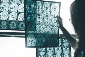 Ca cao và socola tốt cho trí não - cải thiện trí nhớ